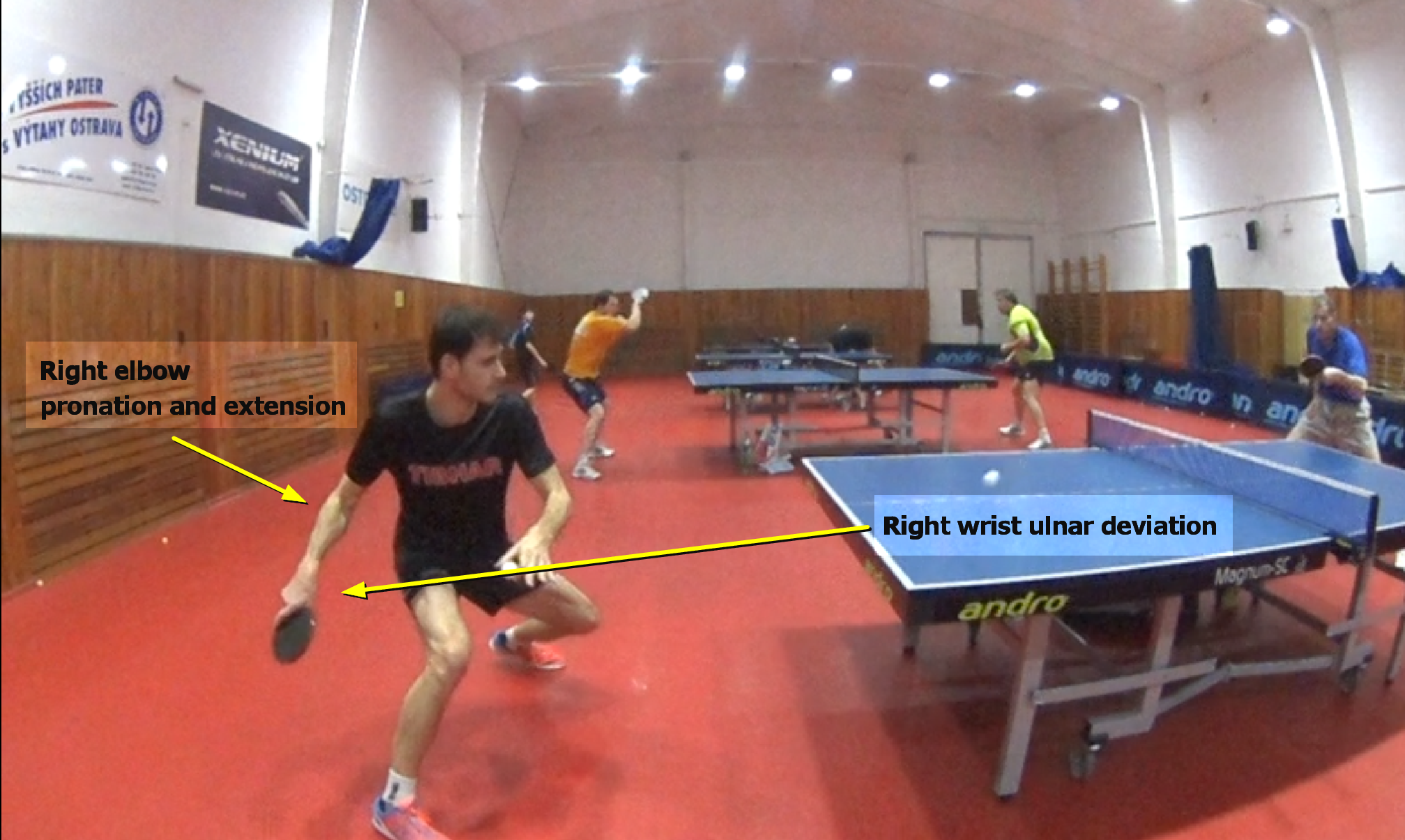 Backswing – Forehand Analysis